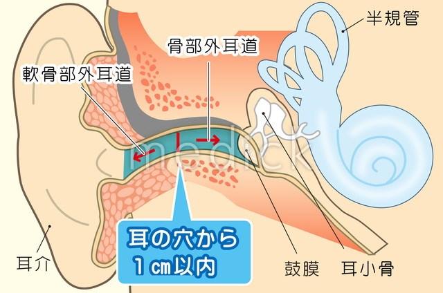 mimisouji-cutiecutie3
